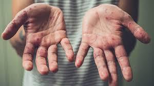 Уровень заболеваемости корью за неделю вырос на 63% — ЦОЗ