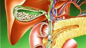 Как узнать о появлении желчнокаменной болезни