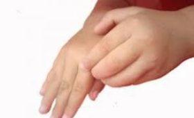 В Молдове от лечения чесотки и педикулеза скончалось пятеро детей
