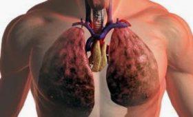 Врачи назвали скрытые симптомы рака лёгких