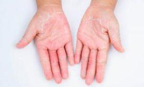 Кому грозит контактный дерматит: объясняет медик-блогер
