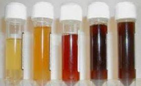 Оранжевая моча: такой цвет – норма или патология?