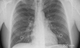 Создана вакцина, которая может победить туберкулез