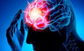 Эксперты назвали причины инсультов в возрасте до 50 лет