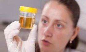 Почему урина пахнет слишком неприятно: 12 возможных причин