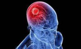 Рак головного мозга: причины, лечение и прогнозы
