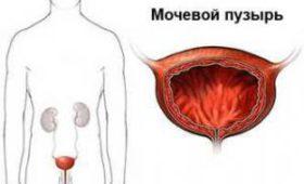 Врачи назвали факторы, влияющие на риск заболевания раком мочевого пузыря